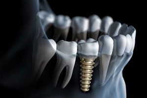 cac-ky-thuat-cay-ghep-implant-thuong-gap