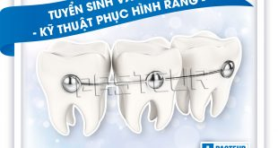 Tuyen-sinh-van-bang-2-ky-thuat-phuc-hinh-rang-pasteur